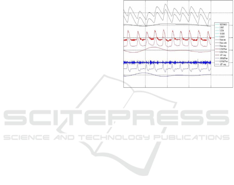 Photoplethysmogram Fits Finger Blood Pressure Waveform for non-In ...