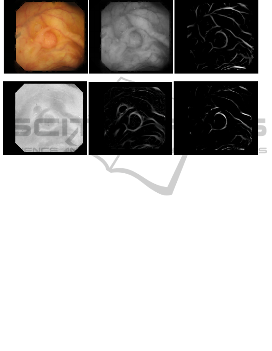 Blood Vessel Characterization in Colonoscopy Images to
