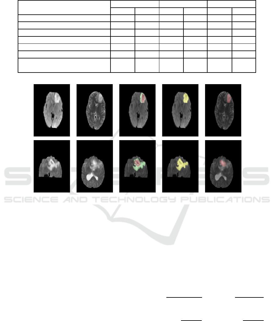 Brain Tumor Segmentation Based on Non Negative Matrix